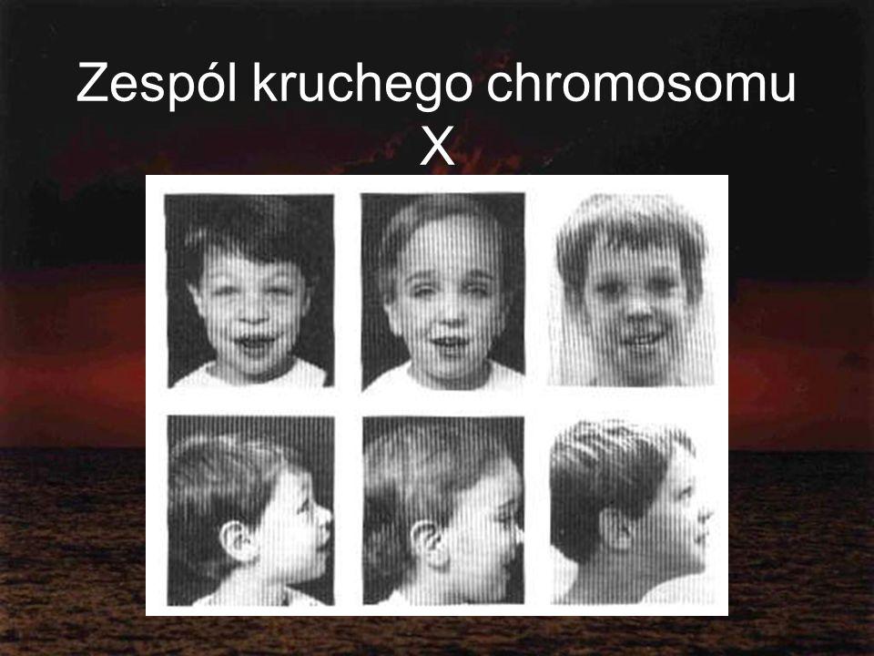 Zespól kruchego chromosomu X
