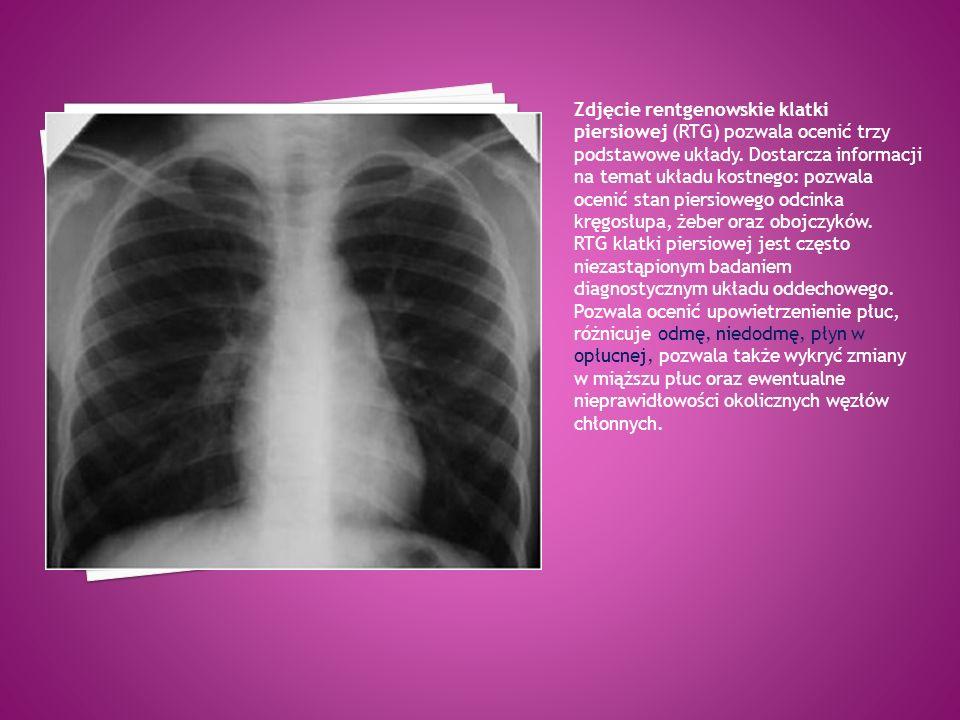 Lewostronna odma opłucnowa w tomografii komputerowej