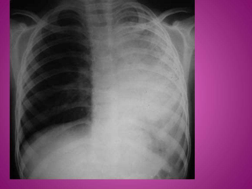  W przypadku odmy opłucnej, niedodęte płuco przedstawia się na zdjęciu RTG jako jasny niejednorodny obszar umiejscowiony blisko wnęki płuca z zaznaczoną białą linią wyznaczającą granicę trzewnego listka opłucnej.