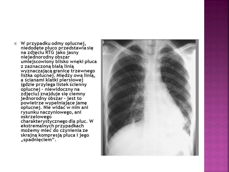 Obraz płuca w przypadku płynu w jamie opłucnej może być identyczny.