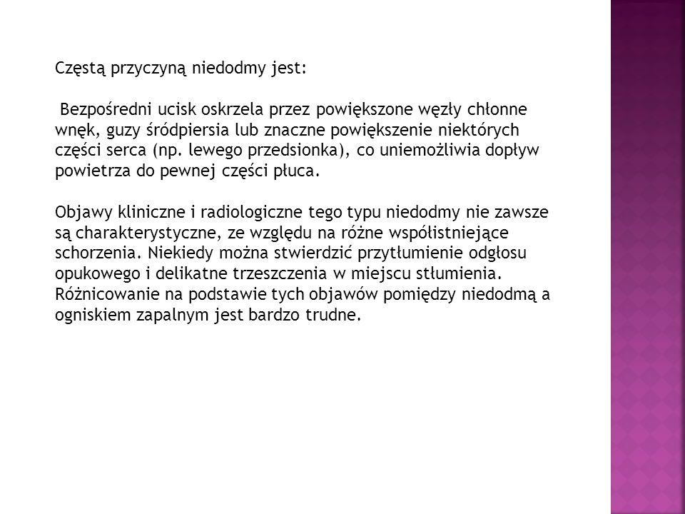 Płyn w jamie opłucnej : A – projekcja tylno- przednia.