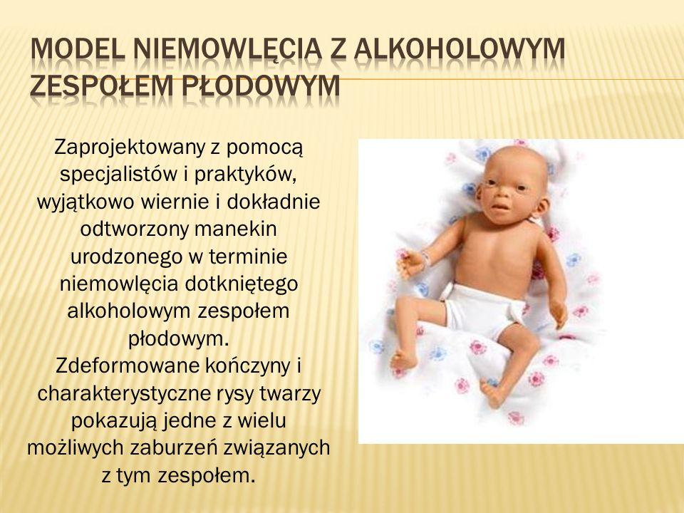Zaprojektowany z pomocą specjalistów i praktyków, wyjątkowo wiernie i dokładnie odtworzony manekin urodzonego w terminie niemowlęcia dotkniętego alkoholowym zespołem płodowym.
