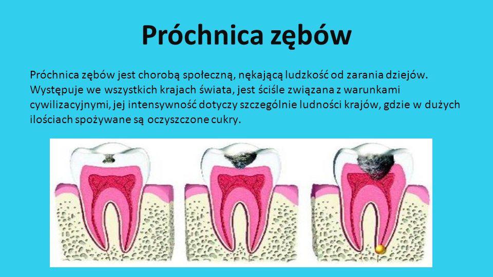 Próchnica zębów Próchnica zębów jest chorobą społeczną, nękającą ludzkość od zarania dziejów. Występuje we wszystkich krajach świata, jest ściśle zwią