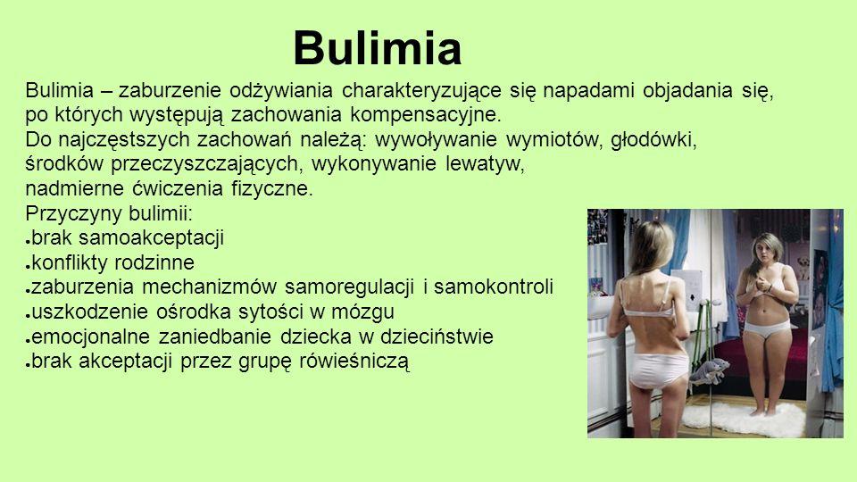 Bulimia Bulimia – zaburzenie odżywiania charakteryzujące się napadami objadania się, po których występują zachowania kompensacyjne. Do najczęstszych z