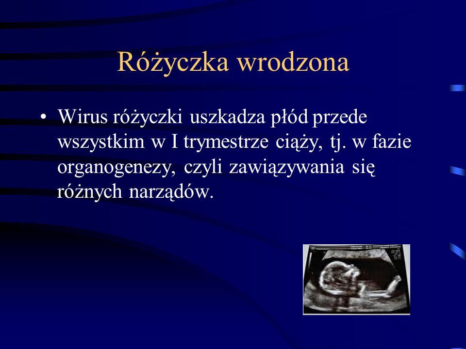 Różyczka wrodzona Wirus różyczki uszkadza płód przede wszystkim w I trymestrze ciąży, tj.