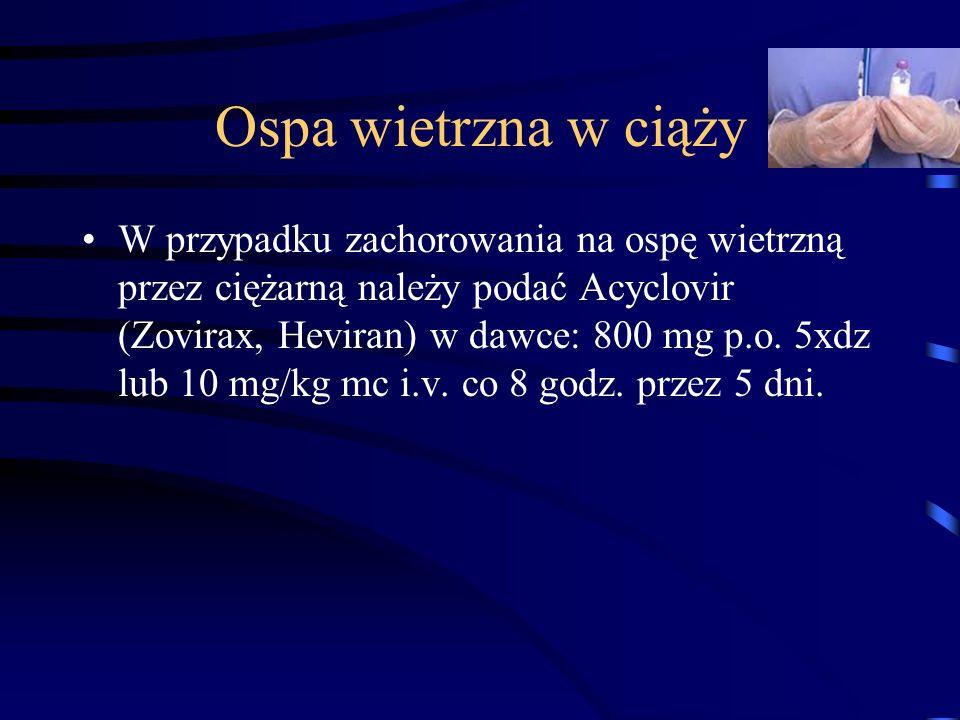 Ospa wietrzna w ciąży W przypadku zachorowania na ospę wietrzną przez ciężarną należy podać Acyclovir (Zovirax, Heviran) w dawce: 800 mg p.o.