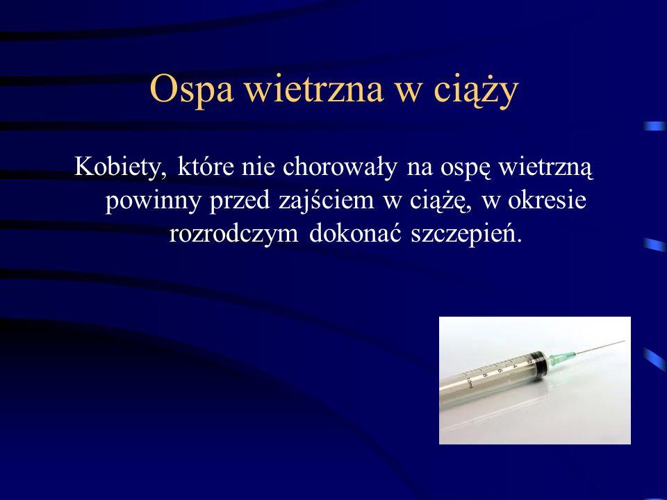 Ospa wietrzna w ciąży Kobiety, które nie chorowały na ospę wietrzną powinny przed zajściem w ciążę, w okresie rozrodczym dokonać szczepień.