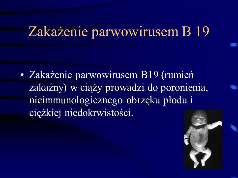 Zakażenie parwowirusem B 19 Zakażenie parwowirusem B19 (rumień zakaźny) w ciąży prowadzi do poronienia, nieimmunologicznego obrzęku płodu i ciężkiej niedokrwistości.
