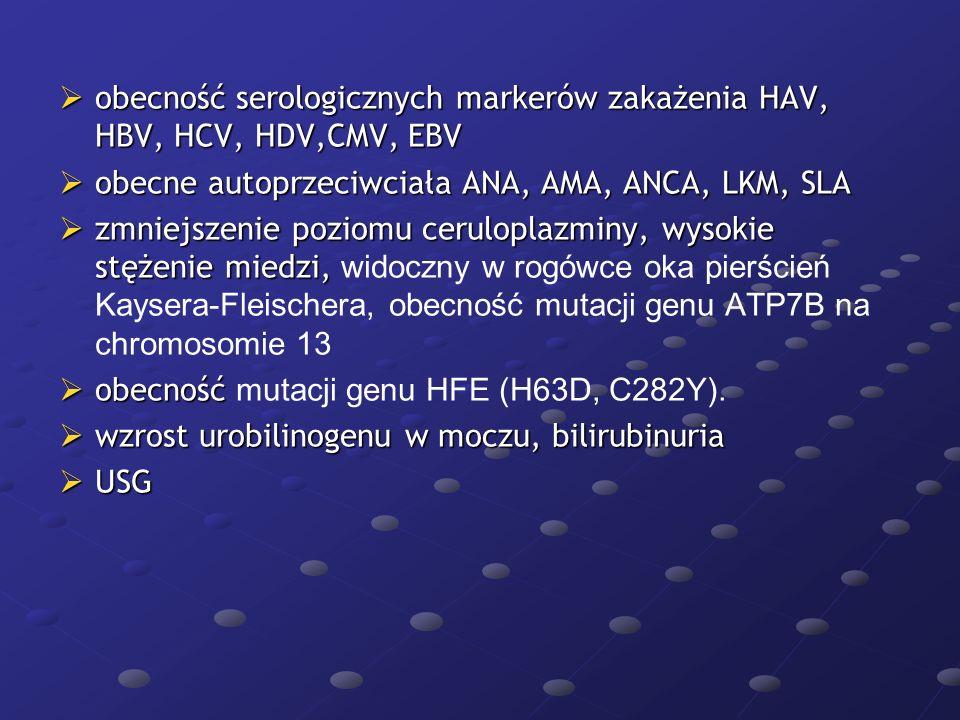  obecność serologicznych markerów zakażenia HAV, HBV, HCV, HDV,CMV, EBV  obecne autoprzeciwciała ANA, AMA, ANCA, LKM, SLA  zmniejszenie poziomu cer