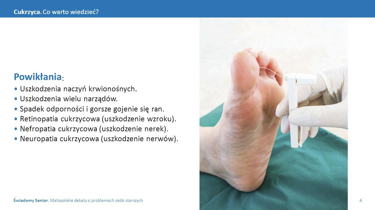 Świadomy Senior. Małopolskie debaty o problemach osób starszych4 Cukrzyca. Co warto wiedzieć? Powikłania : Uszkodzenia naczyń krwionośnych. Uszkodzeni