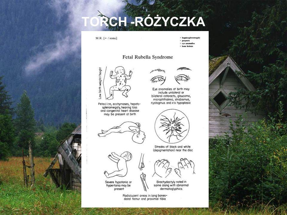 TORCH -RÓŻYCZKA