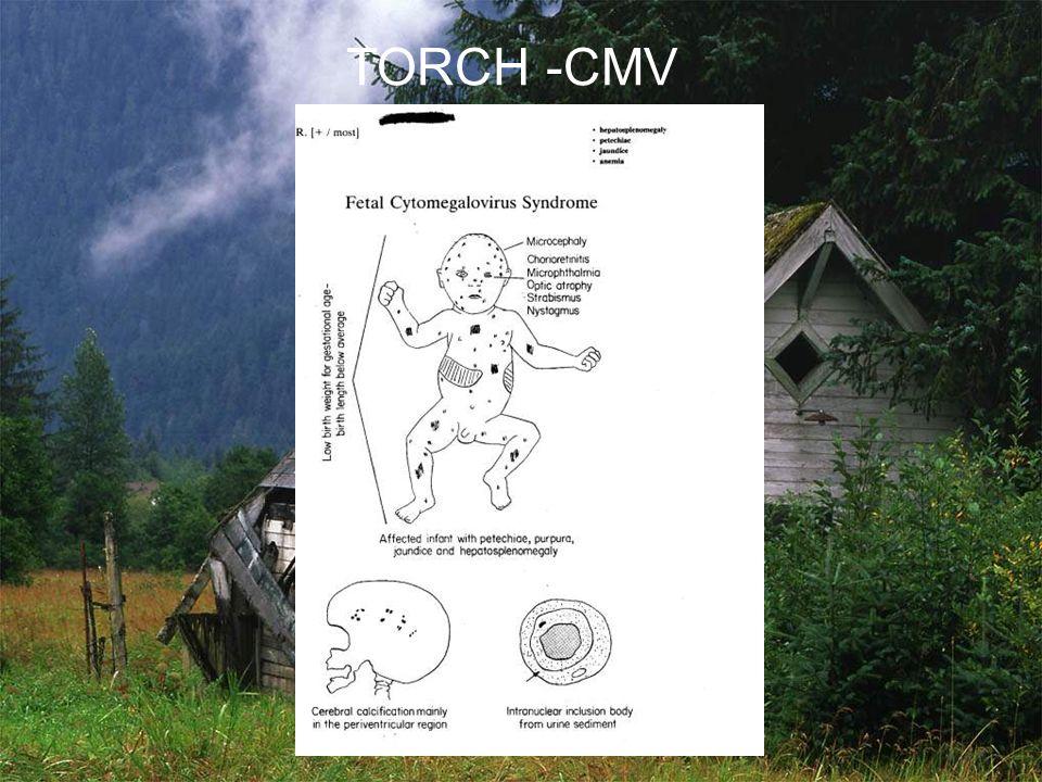 TORCH -CMV