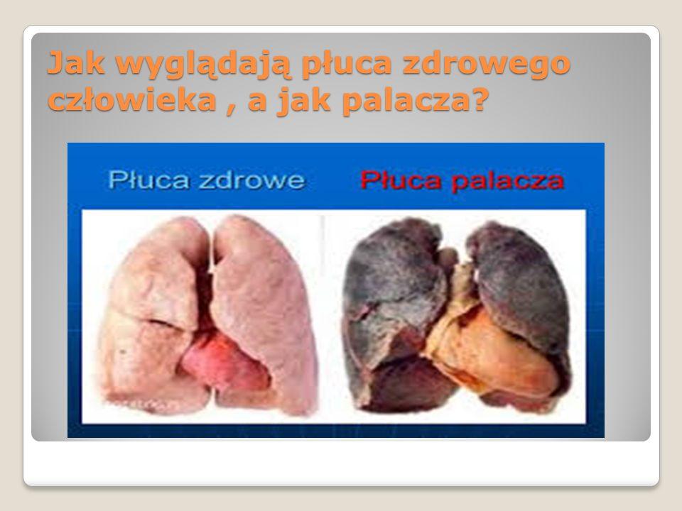 Składniki dymu tytoniowego Aceton – rozpuszczalnik Arsen - stosowany jako popularna trutka na szczury i inne gryzonie Chlorek winylu - związek używany także do produkcji plastiku Ciała smołowate - są odpowiedzialne za powstawanie nowotworów złośliwych Fenole - niszczą rzęski nabłonka wyścielającego oskrzela Formaldehyd - związek stosowany do konserwacji preparatów biologicznych np.