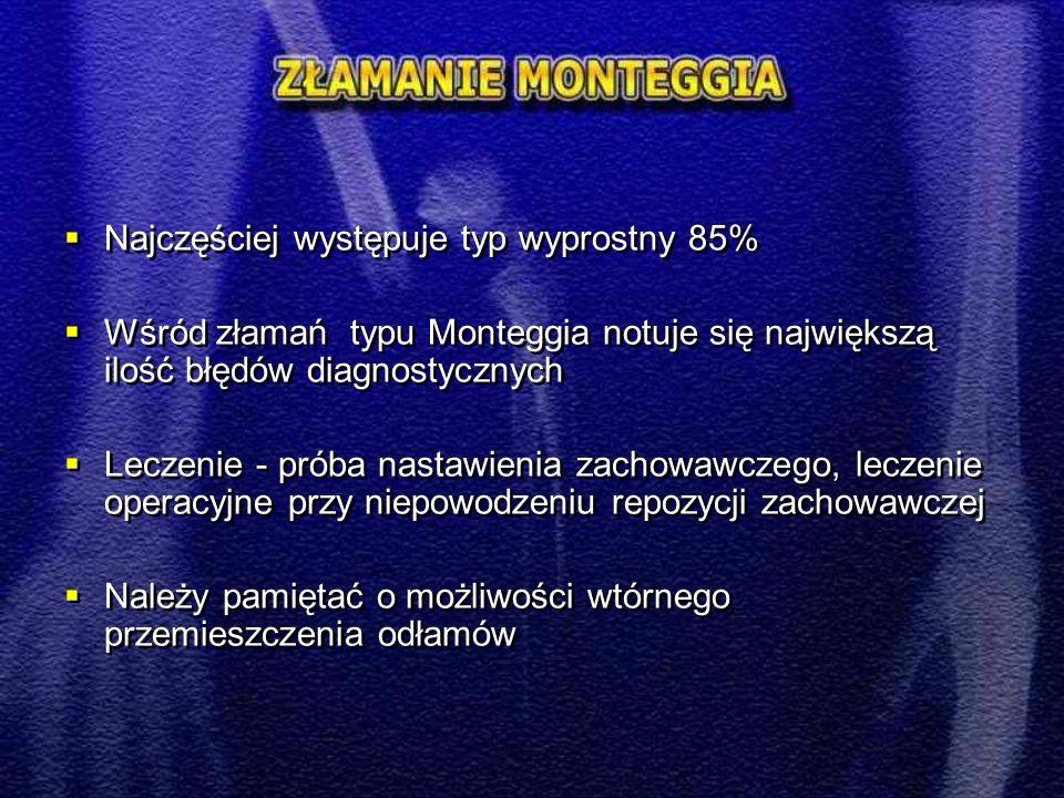  Najczęściej występuje typ wyprostny 85%  Wśród złamań typu Monteggia notuje się największą ilość błędów diagnostycznych  Leczenie - próba nastawienia zachowawczego, leczenie operacyjne przy niepowodzeniu repozycji zachowawczej  Należy pamiętać o możliwości wtórnego przemieszczenia odłamów  Najczęściej występuje typ wyprostny 85%  Wśród złamań typu Monteggia notuje się największą ilość błędów diagnostycznych  Leczenie - próba nastawienia zachowawczego, leczenie operacyjne przy niepowodzeniu repozycji zachowawczej  Należy pamiętać o możliwości wtórnego przemieszczenia odłamów