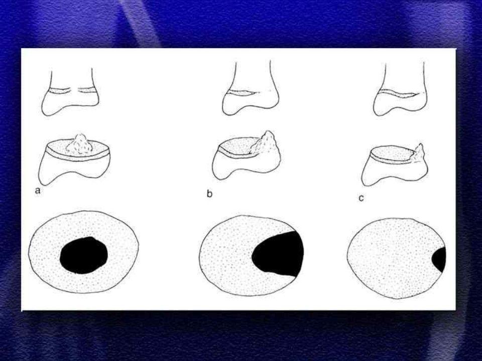 """ złuszczenia nasad  złamania podokostnowe,typu """" zielona gałązka  złamania z oderwania – awulsyjne  deformacje plastyczne (Border 1874 ) dotyczy jedynie kości promieniowej, przewlekły uraz, który nie doprowadza do złamania, a jedynie do nadmiernego wygięcia kości  złuszczenia nasad  złamania podokostnowe,typu """" zielona gałązka  złamania z oderwania – awulsyjne  deformacje plastyczne (Border 1874 ) dotyczy jedynie kości promieniowej, przewlekły uraz, który nie doprowadza do złamania, a jedynie do nadmiernego wygięcia kości"""