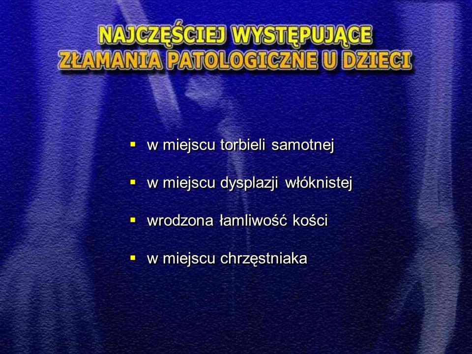  Złamania przynasad  Złuszczenia dalszej nasady kości promieniowej to najczęstszy uraz chrząstki nasadowej u dzieci  Najczęstsze złuszczenia typ I i II  Typ III IV i V występują sporadycznie, są obarczone możliwością wywołania zaburzeń wzrostu kości (zniekształcenia pseudo-Madelunga)  Złamania przynasad  Złuszczenia dalszej nasady kości promieniowej to najczęstszy uraz chrząstki nasadowej u dzieci  Najczęstsze złuszczenia typ I i II  Typ III IV i V występują sporadycznie, są obarczone możliwością wywołania zaburzeń wzrostu kości (zniekształcenia pseudo-Madelunga)