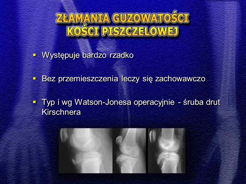  Występuje bardzo rzadko  Bez przemieszczenia leczy się zachowawczo  Typ i wg Watson-Jonesa operacyjnie - śruba drut Kirschnera  Występuje bardzo rzadko  Bez przemieszczenia leczy się zachowawczo  Typ i wg Watson-Jonesa operacyjnie - śruba drut Kirschnera