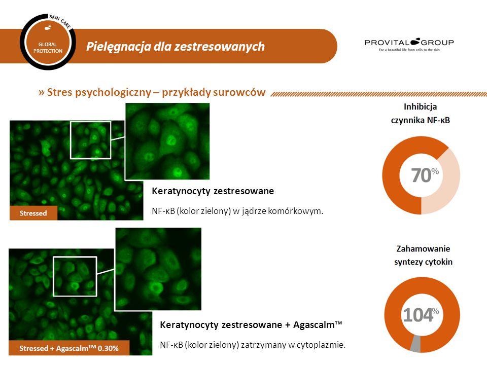 Pielęgnacja dla zestresowanych GLOBAL PROTECTION » Stres psychologiczny – przykłady surowców Keratynocyty zestresowane NF-κB (kolor zielony) w jądrze komórkowym.