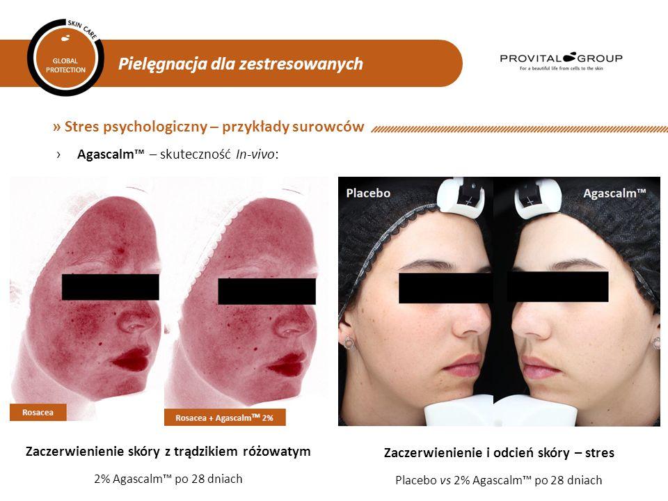Pielęgnacja dla zestresowanych GLOBAL PROTECTION » Stres psychologiczny – przykłady surowców ›Agascalm™ – skuteczność In-vivo: Zaczerwienienie skóry z trądzikiem różowatym 2% Agascalm™ po 28 dniach Zaczerwienienie i odcień skóry – stres Placebo vs 2% Agascalm™ po 28 dniach