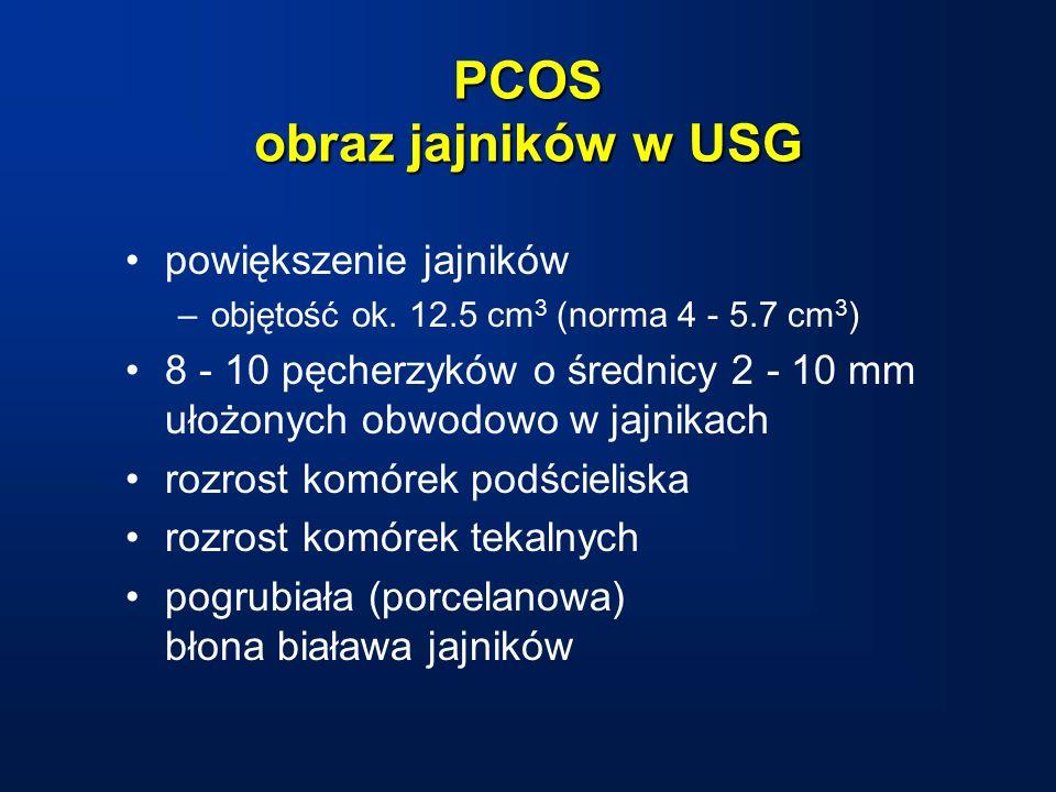 PCOS obraz jajników w USG powiększenie jajników –objętość ok.