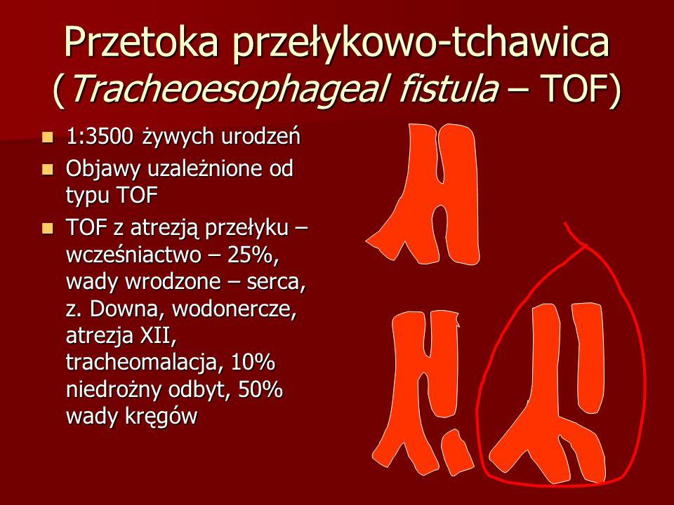 Przetoka przełykowo-tchawica (Tracheoesophageal fistula – TOF) 1:3500 żywych urodzeń 1:3500 żywych urodzeń Objawy uzależnione od typu TOF Objawy uzależnione od typu TOF TOF z atrezją przełyku – wcześniactwo – 25%, wady wrodzone – serca, z.