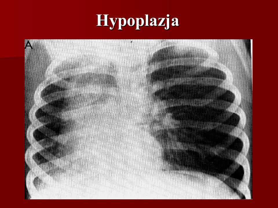 Hypoplazja