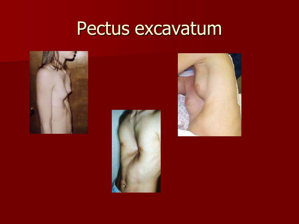 Pectus excavatum
