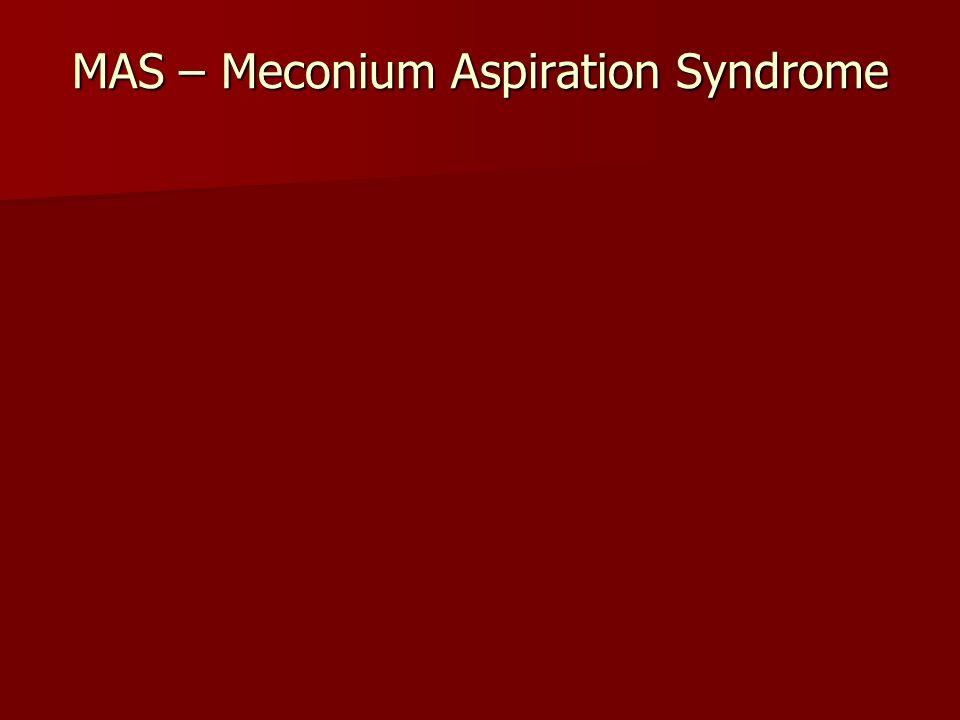 MAS – Meconium Aspiration Syndrome