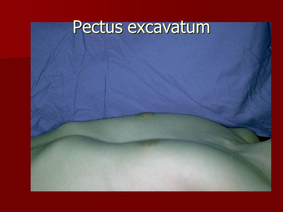 Diaphragmatic hernia (7Hbd)