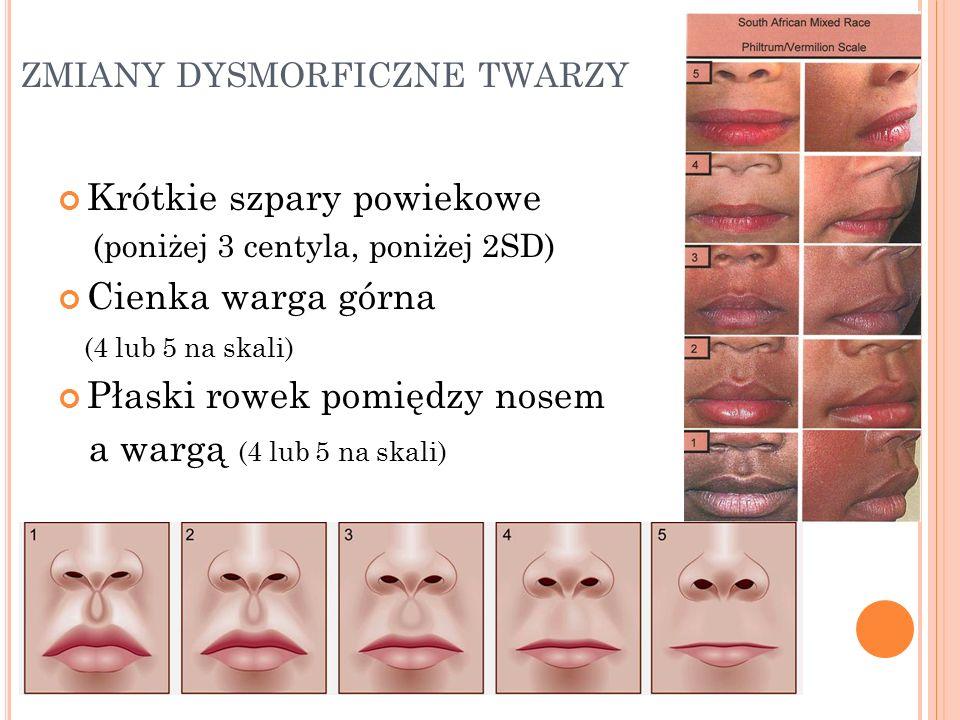 ZMIANY DYSMORFICZNE TWARZY Krótkie szpary powiekowe (poniżej 3 centyla, poniżej 2SD) Cienka warga górna (4 lub 5 na skali) Płaski rowek pomiędzy nosem a wargą (4 lub 5 na skali)