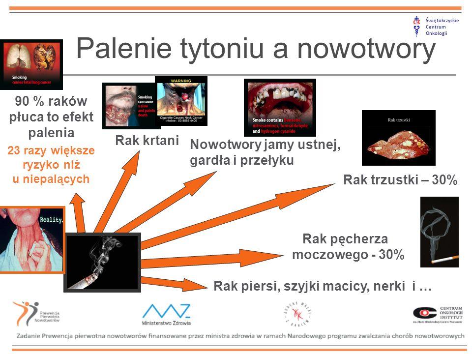 """Świętokrzyskie Centrum Onkologii """"Raka nie da się wyleczyć """"Rak boi się noża i nie powinno się go operować Czy możemy się zgodzić z tymi słowami?"""