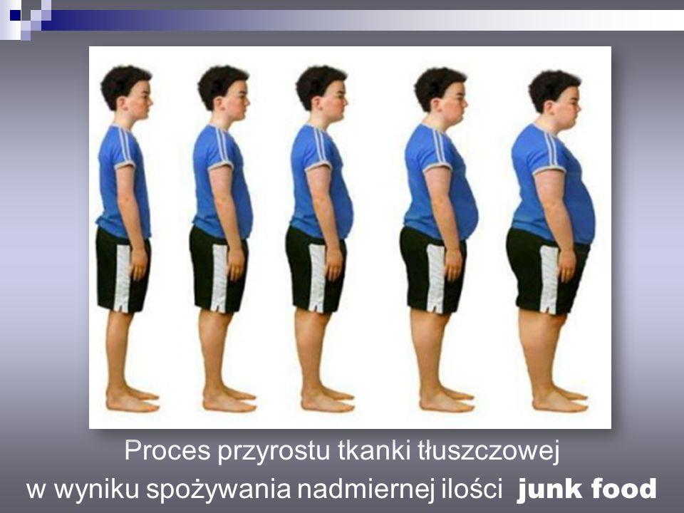 Proces przyrostu tkanki tłuszczowej w wyniku spożywania nadmiernej ilości junk food