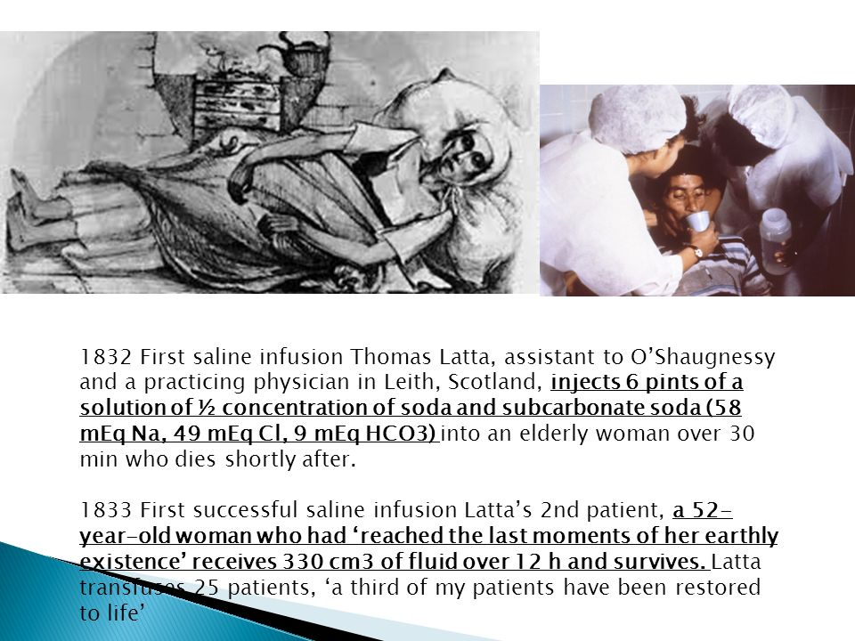 1832 First saline infusion Thomas Latta, assistant to O'Shaugnessy and a practicing physician in Leith, Scotland, injects 6 pints of a solution of ½ concentration of soda and subcarbonate soda (58 mEq Na, 49 mEq Cl, 9 mEq HCO3) into an elderly woman over 30 min who dies shortly after.