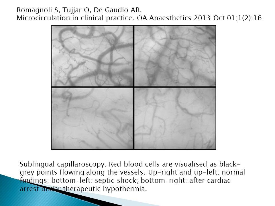 Sublingual capillaroscopy.