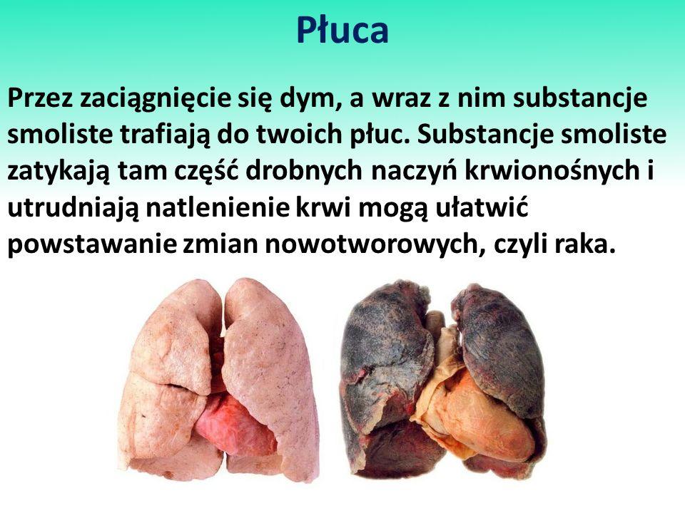 Płuca Przez zaciągnięcie się dym, a wraz z nim substancje smoliste trafiają do twoich płuc. Substancje smoliste zatykają tam część drobnych naczyń krw