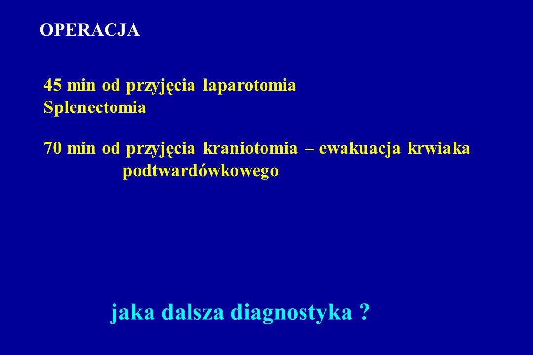 OPERACJA 45 min od przyjęcia laparotomia Splenectomia 70 min od przyjęcia kraniotomia – ewakuacja krwiaka podtwardówkowego jaka dalsza diagnostyka ?