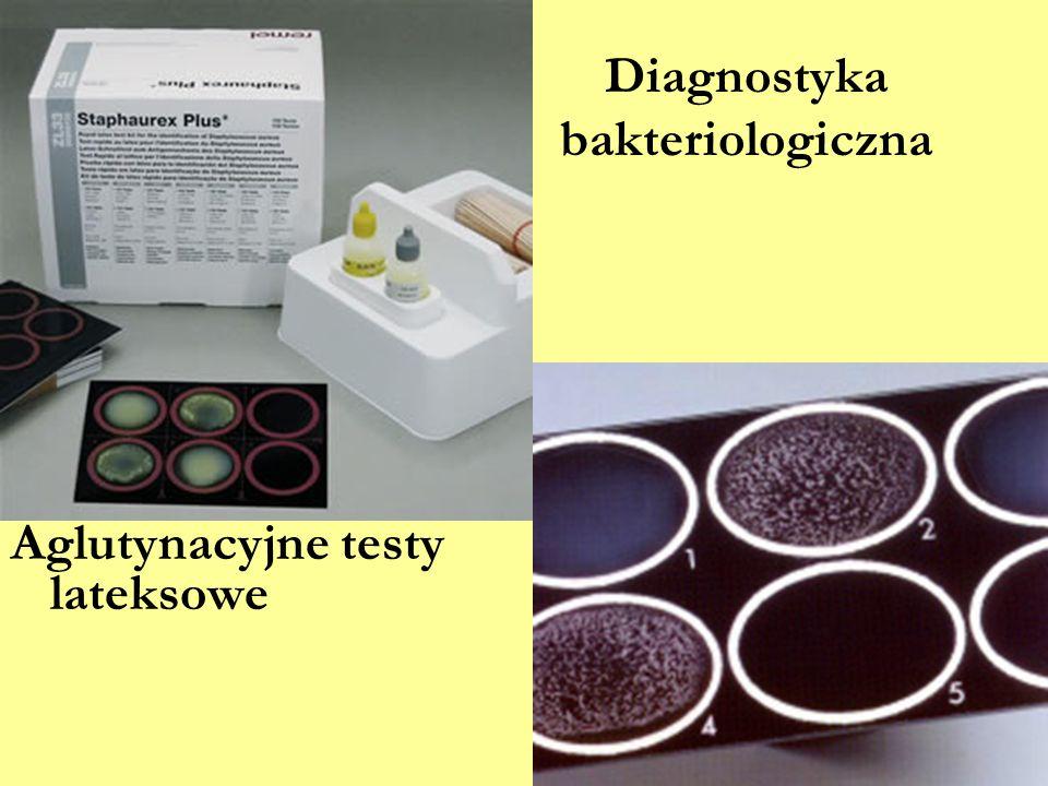 Diagnostyka bakteriologiczna Aglutynacyjne testy lateksowe
