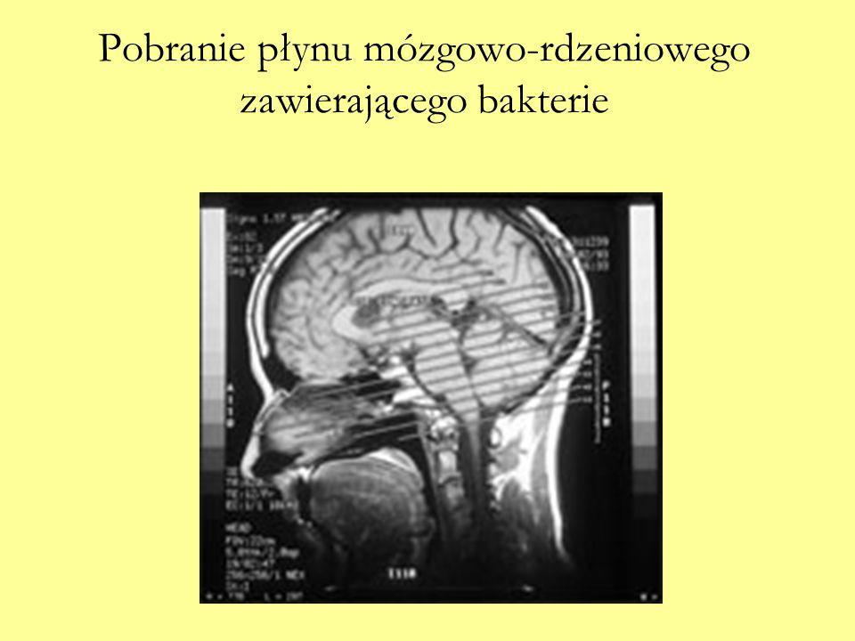 Pobranie płynu mózgowo-rdzeniowego zawierającego bakterie