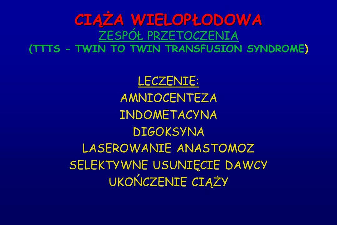 CIĄŻA WIELOPŁODOWA CIĄŻA WIELOPŁODOWA ZESPÓŁ PRZETOCZENIA (TTTS - TWIN TO TWIN TRANSFUSION SYNDROME) LECZENIE: AMNIOCENTEZA INDOMETACYNA DIGOKSYNA LAS