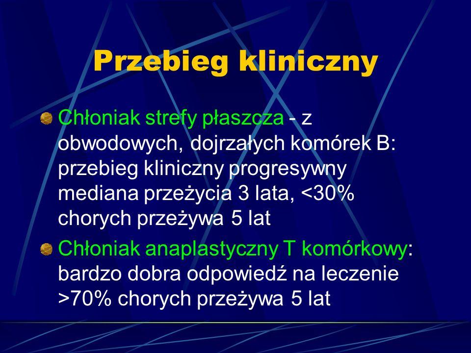 Przebieg kliniczny Chłoniak strefy płaszcza - z obwodowych, dojrzałych komórek B: przebieg kliniczny progresywny mediana przeżycia 3 lata, <30% chorych przeżywa 5 lat Chłoniak anaplastyczny T komórkowy: bardzo dobra odpowiedź na leczenie >70% chorych przeżywa 5 lat