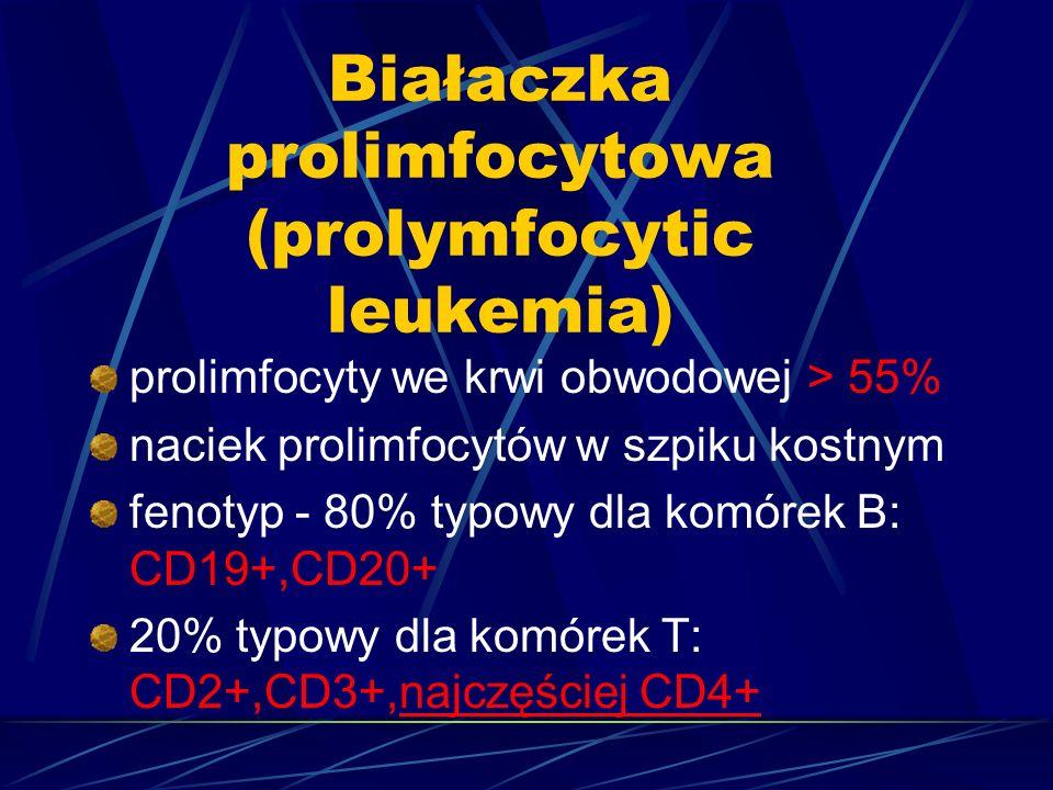 Białaczka prolimfocytowa (prolymfocytic leukemia) prolimfocyty we krwi obwodowej > 55% naciek prolimfocytów w szpiku kostnym fenotyp - 80% typowy dla komórek B: CD19+,CD20+ 20% typowy dla komórek T: CD2+,CD3+,najczęściej CD4+