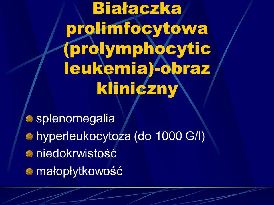 Białaczka prolimfocytowa (prolymphocytic leukemia)-obraz kliniczny splenomegalia hyperleukocytoza (do 1000 G/l) niedokrwistość małopłytkowość