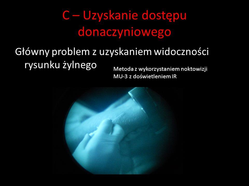 C – Uzyskanie dostępu donaczyniowego Główny problem z uzyskaniem widoczności rysunku żylnego Metoda z wykorzystaniem noktowizji MU-3 z doświetleniem IR