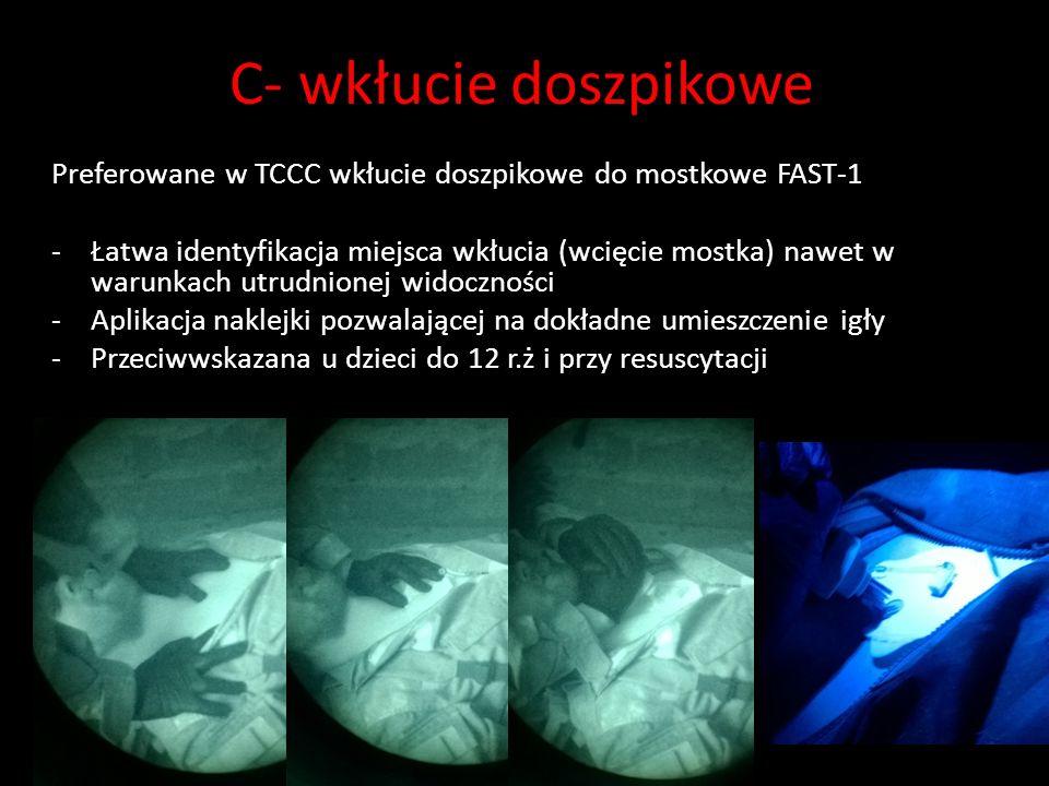 C- wkłucie doszpikowe Preferowane w TCCC wkłucie doszpikowe do mostkowe FAST-1 -Łatwa identyfikacja miejsca wkłucia (wcięcie mostka) nawet w warunkach utrudnionej widoczności -Aplikacja naklejki pozwalającej na dokładne umieszczenie igły -Przeciwwskazana u dzieci do 12 r.ż i przy resuscytacji