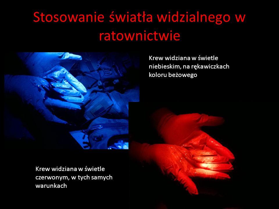 Stosowanie światła widzialnego w ratownictwie Krew widziana w świetle niebieskim, na rękawiczkach koloru beżowego Krew widziana w świetle czerwonym, w tych samych warunkach