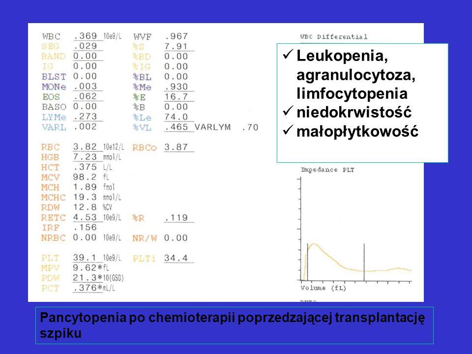 Pancytopenia po chemioterapii poprzedzającej transplantację szpiku Leukopenia, agranulocytoza, limfocytopenia niedokrwistość małopłytkowość