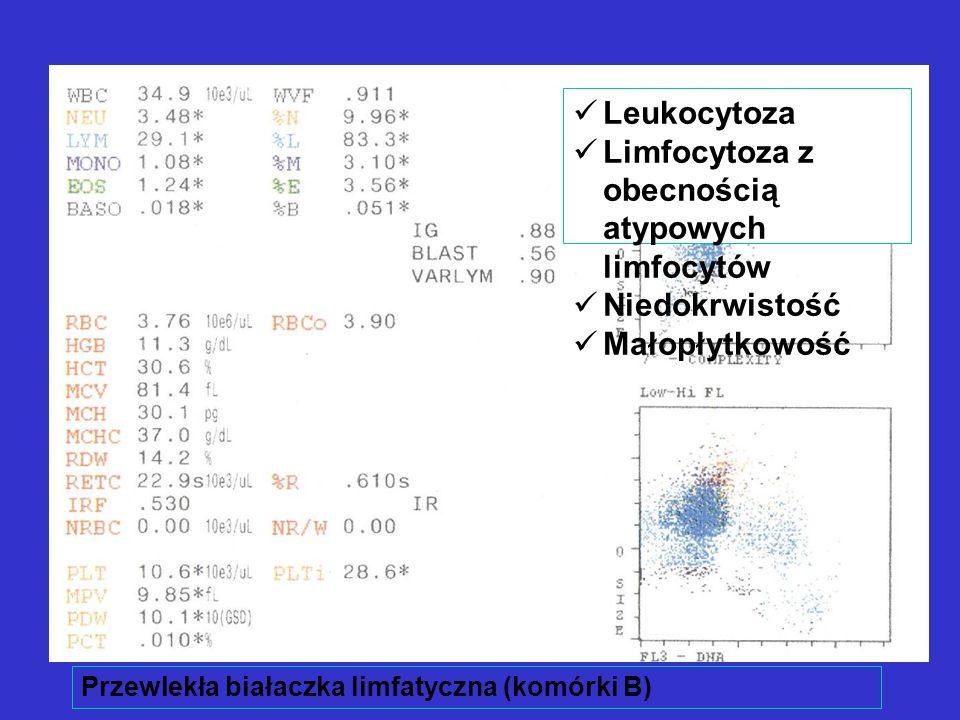 Przewlekła białaczka limfatyczna (komórki B) Leukocytoza Limfocytoza z obecnością atypowych limfocytów Niedokrwistość Małopłytkowość
