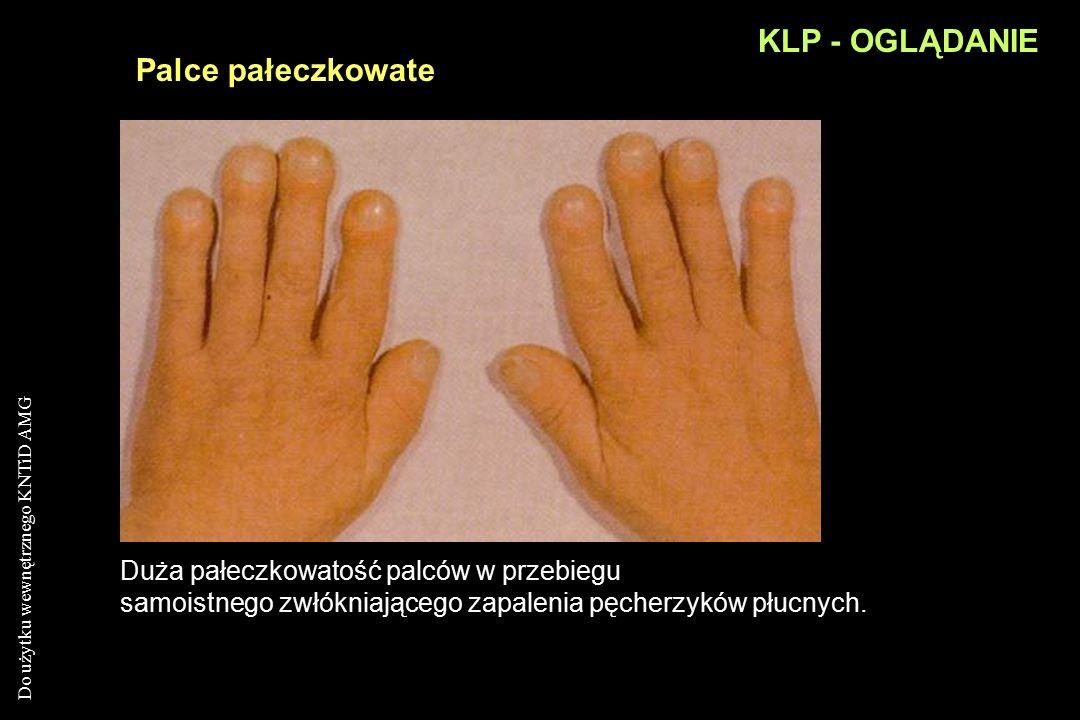 Do użytku wewnętrznego KNTiD AMG KLP - OGLĄDANIE Palce pałeczkowate badanie tętnienia łoża paznokciapalec pałeczkowaty: zanik kąta łoża paznokcia zwię
