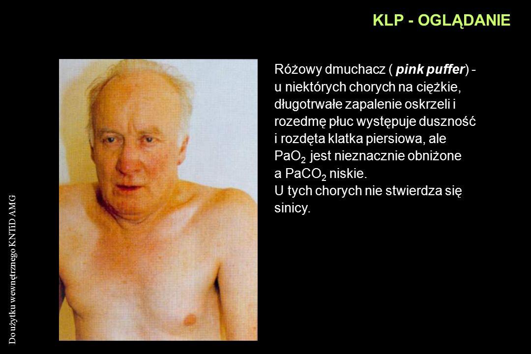 Do użytku wewnętrznego KNTiD AMG KLP - OGLĄDANIE Siny obrzęknięty ( blue bloater ) - u takich chorych dochodzi do zwiększenia PaCo 2 i obniżenia PaO 2