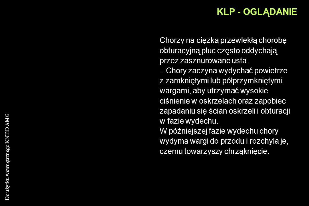 Do użytku wewnętrznego KNTiD AMG KLP - OGLĄDANIE Różowy dmuchacz ( pink puffer) - u niektórych chorych na ciężkie, długotrwałe zapalenie oskrzeli i ro